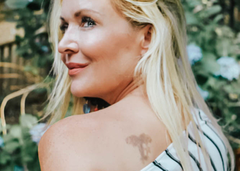 No More Ink: Laser Tattoo Removal